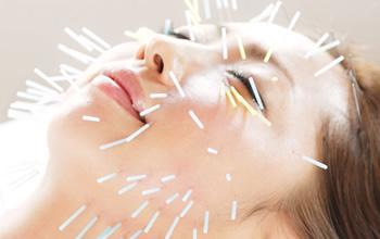 鍼でお顔のツボ&筋肉を刺激して凝り&緩みを解消