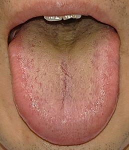 舌苔が黄色い舌