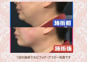 鍼で流れを整えてお顔のむくみをケア