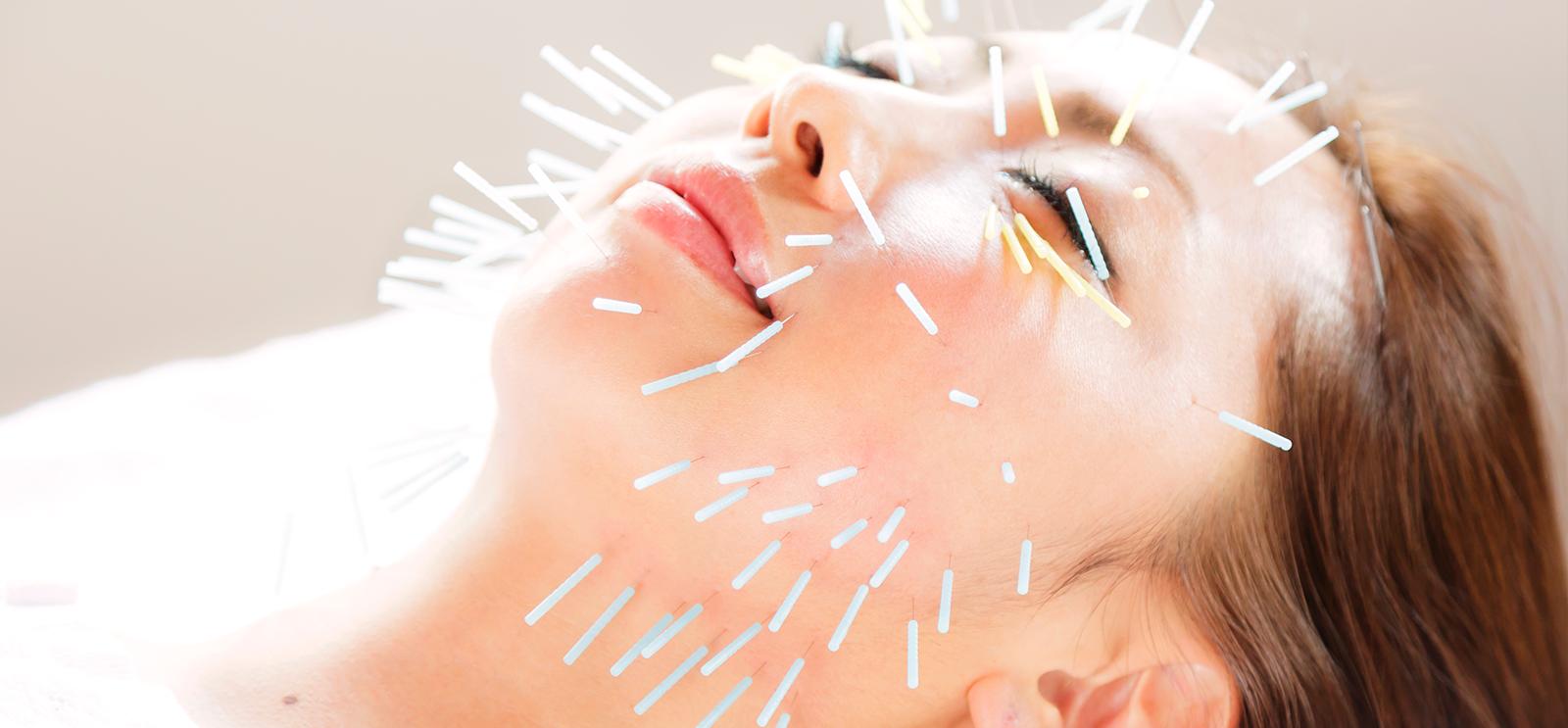国家資格取得者による施術安全で効果の高い美容鍼灸を実践し