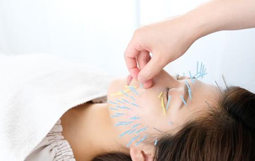 お顔への鍼の施術
